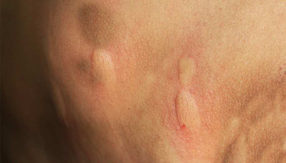 Identifying Common Insect Bites And Stings Sentinel Blog