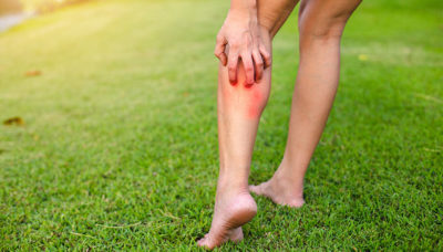 scratching itchy legs on grass